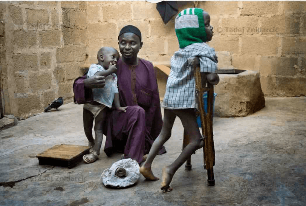 These are the 5 African Countries Facing Acute Hunger