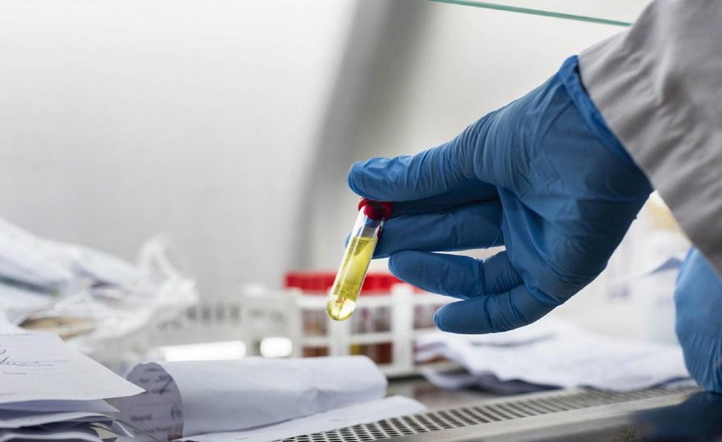 Confusion Over Covid-19 Variant Testing in Namibia